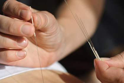 Full-time diploma in acupuncture and TCM